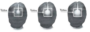 Vertex-hair-loss-minoxidil-treatment